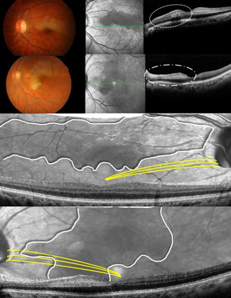 Ischemic Injury of the Papillomacular Bundle Is a Predictive Marker of Poor Vision