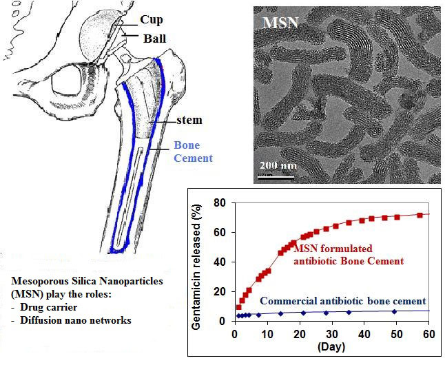 nanostructured material formulated acrylic bone cements enhanced-drug release-medicine innovates