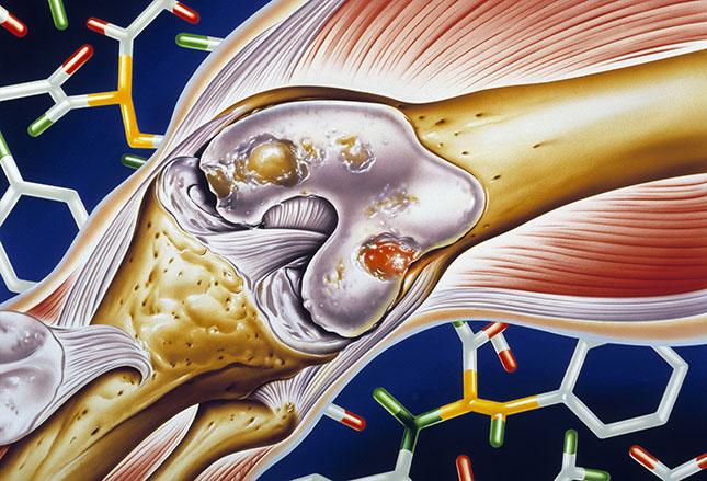 TNF Vaccine for Rheumatoid Arthritis