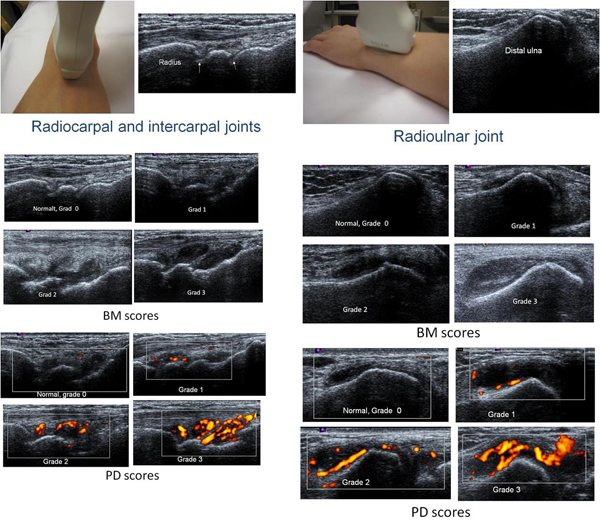 Ultrasound hand detect subclinical inflammation rheumatoid arthritis remission - Medicine Innovates