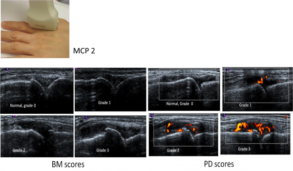 Ultrasound Of The Hand Is Sufficient To Detect Subclinical Inflammation In Rheumatoid Arthritis Remission Medicine Innovates Medicine Innovates