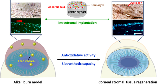 A Novel Biofunctional Cryogel Scaffold for Corneal Stromal Tissue Repair, Medicine Innovates