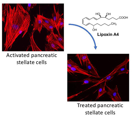 A lipid against pancreatic cancer: Reprogramming the tumor stroma-Medicine Innovates