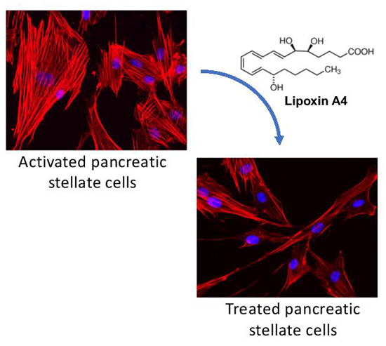 A lipid against pancreatic cancer: Reprogramming the tumor stroma - Medicine Innovates
