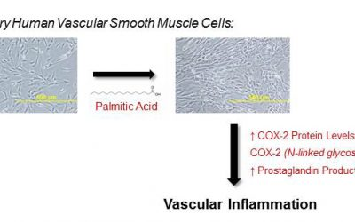 Saturated fatty acids induce inflammation in blood vessels