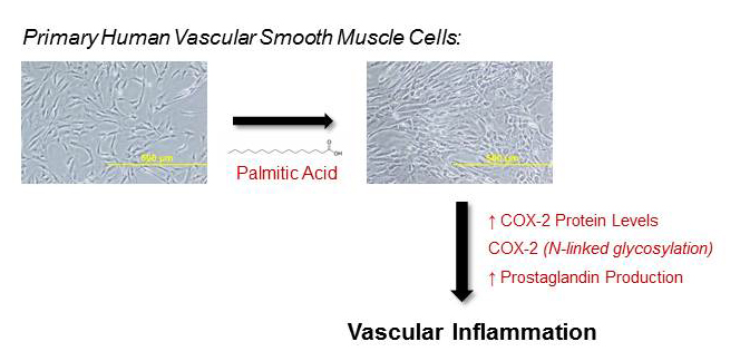 Saturated fatty acids induce inflammation in blood vessels - Medicine Innovates