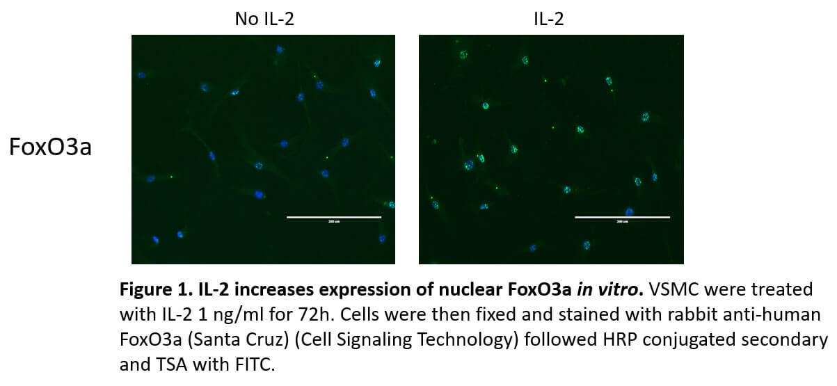 Expression of a Functional IL-2 Receptor in Vascular Smooth Muscle Cells - Medicine Innovates