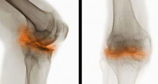 Catabolism of Fibromodulin Developmental Rudiment and Pathologic Articular Cartilage-Medicine Innovates