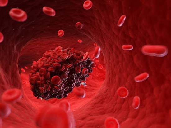 Senescent Cells Promote Blood Clotting - Medicine Innovates