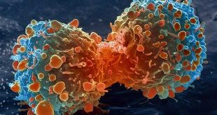 Metformin-panobinostat combination against bladder cancer-Medicine Innovates