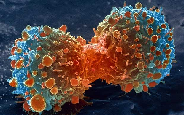 Metformin-panobinostat combination against bladder cancer-Medicine Innovates