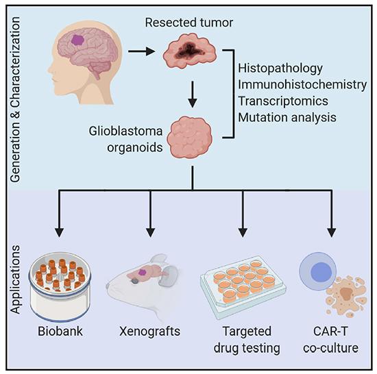 Patient-Derived Glioblastoma Organoid Model - Medicine Innovates