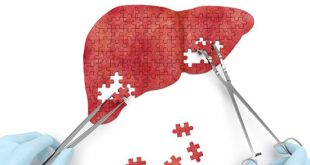 Targeting miR-144 a promising therapeutic strategy for the treatment of liver diseases in obese patients - Medicine Innovates