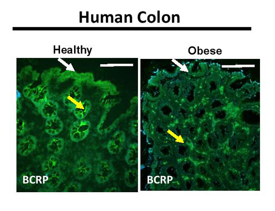 Intestinal breast cancer resistance protein (BCRP) requires Janus kinase 3 activity for drug efflux and barrier functions in obesity - Medicine Innovates