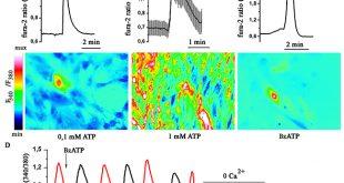 Adenosine-5′-triphosphate suppresses proliferation and migration capacity of human endometrial stem cells - Medicine Innovates