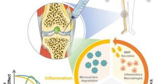 Bioresponsive microspheres for on-demand delivery of anti-inflammatory cytokines for articular cartilage repair - Medicine Innovates