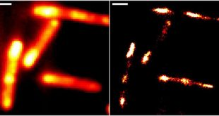 Enabling live-cell RNA imaging with unprecedented resolution - Medicine Innovates