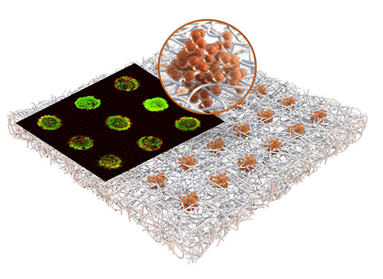 New technology develops massive arrays of tiny tumor models inside paper sheet for storage and drug testing - Medicine Innovates