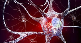 Extracellular DJ-1 induces sterile inflammation in the ischemic brain - Medicine Innovates
