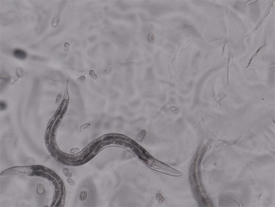 A little worm as a model system to investigate lipoic acid metabolism - Medicine Innovates