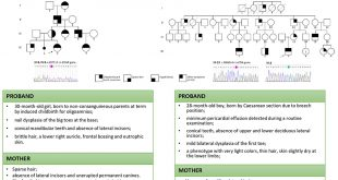 Mutations in EDA and EDAR genes cause dominant syndromic tooth agenesis - Medicine Innovates
